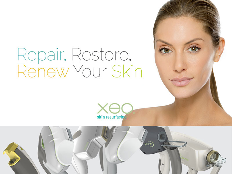 laser skin treatment clinic bolton