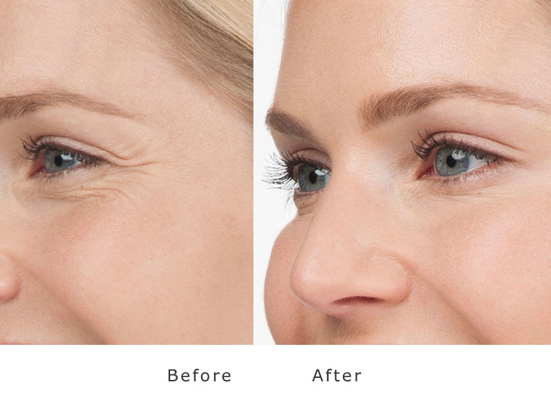 before and after treatment of botox