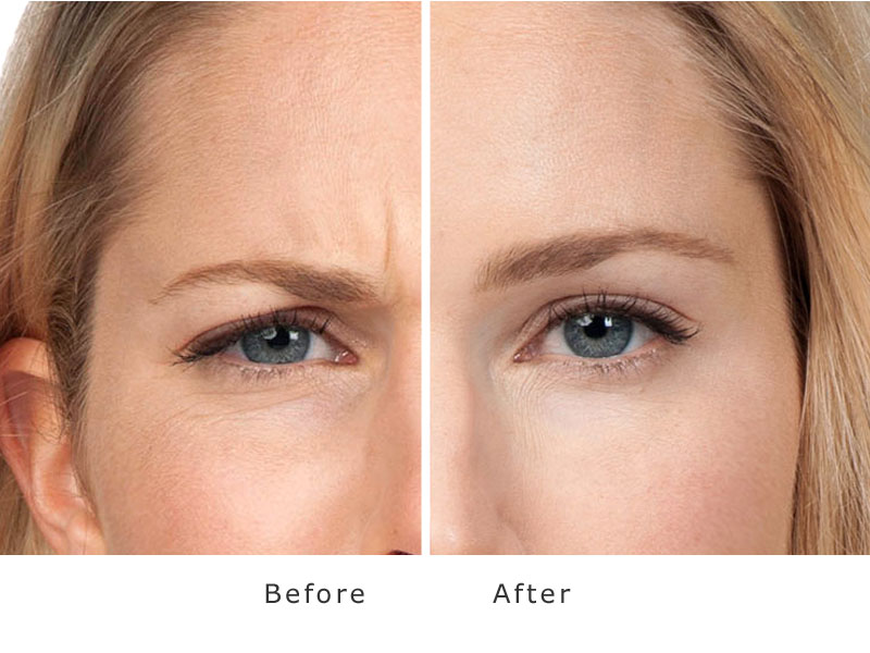 face results before and after treatment of anti wrinkle injections