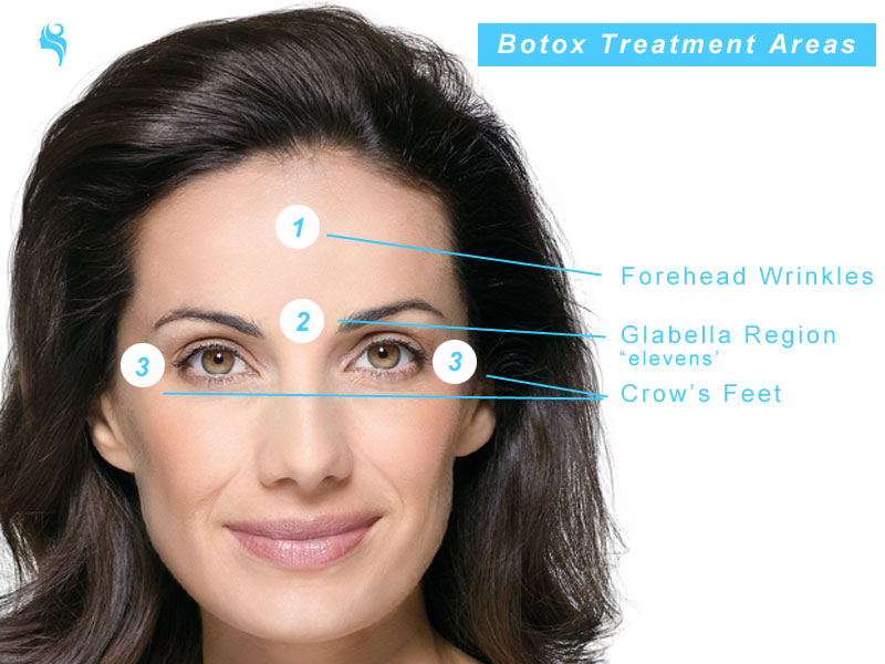 typical botox treatment areas on the face