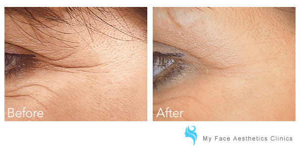 before and after fine lines have been injected