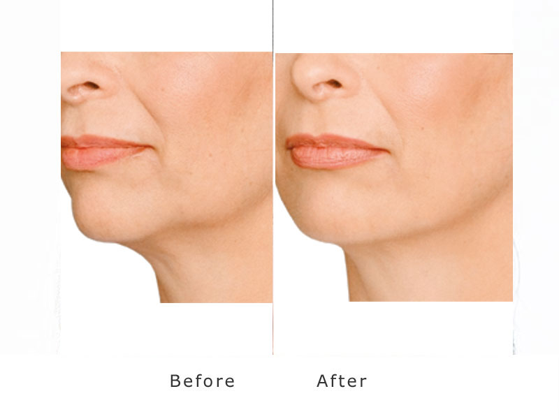 deral filler showing improvement to jowl and jawline