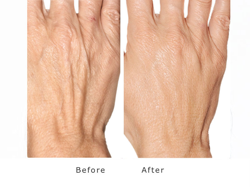 increase in volume and smoothing effect of dermal filler to hands