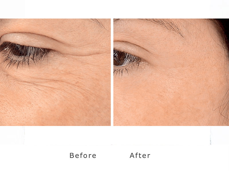 reduction of crows feet around the eyes using a dermal filler