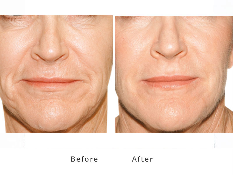 skin smoothing and plumping using a dermal filler to the nasiofolds and marionette