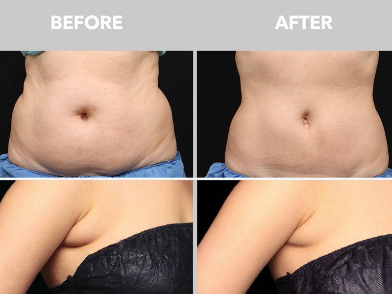 example of fat-eliminated and the skin  elasticity improved