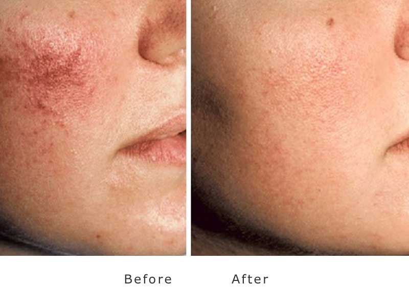 Rosacea And Acne Treatment At My Face Aesthetics Laser Clinic Bolton