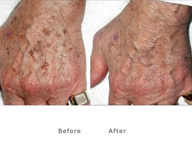 brown spots to hands before and after treatment