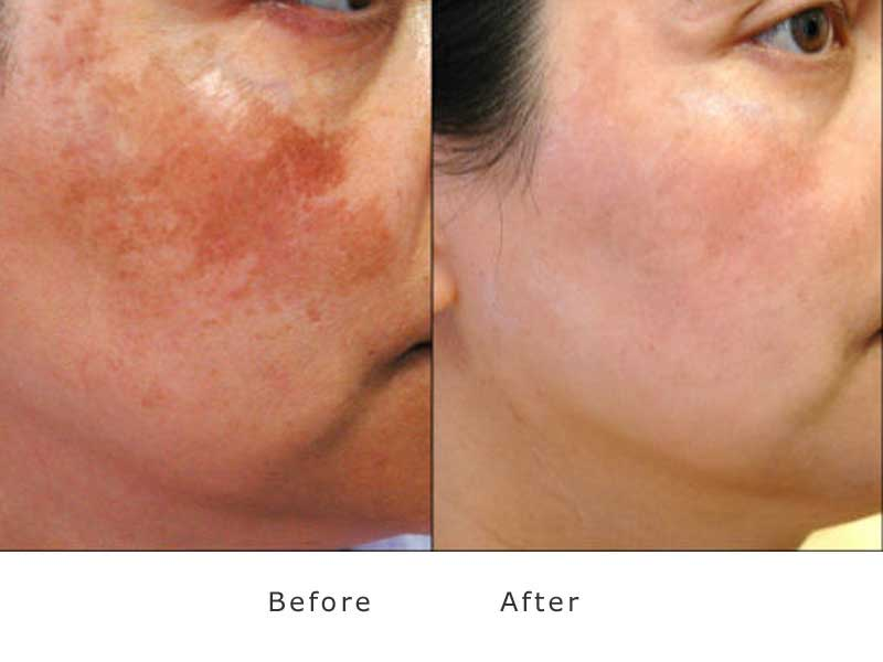 skin redness treated with ipl laser