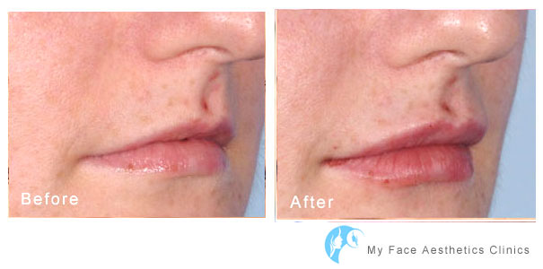 increase to lip volume and shape to lips aesthrtic enhancement at my face aesthetics