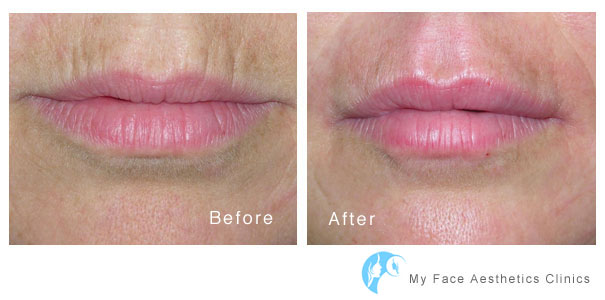 lip fillers volume replacement to womens lips