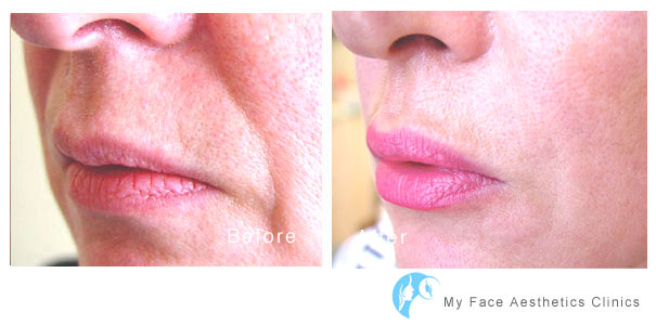 icreasing lip volume and shape in the bolton aesthetic clinic using fillers