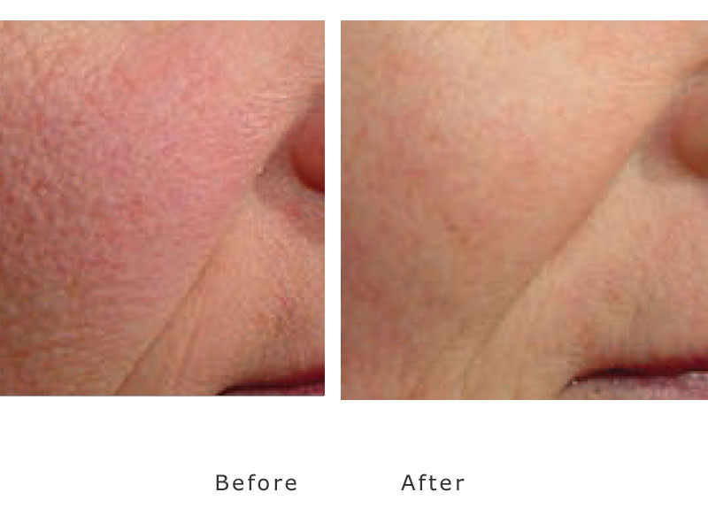 red cheeks treated by gensis laser