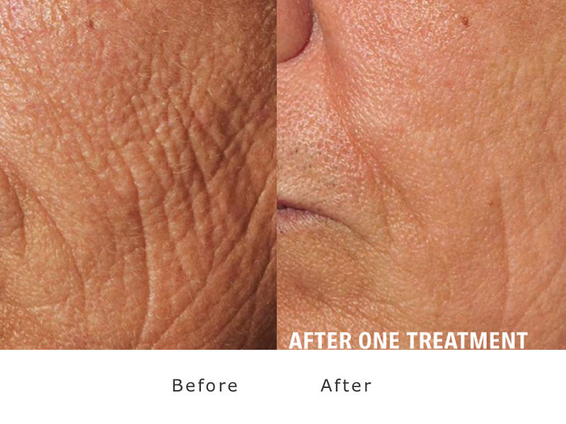 resurfacing of the skin with laser sample1