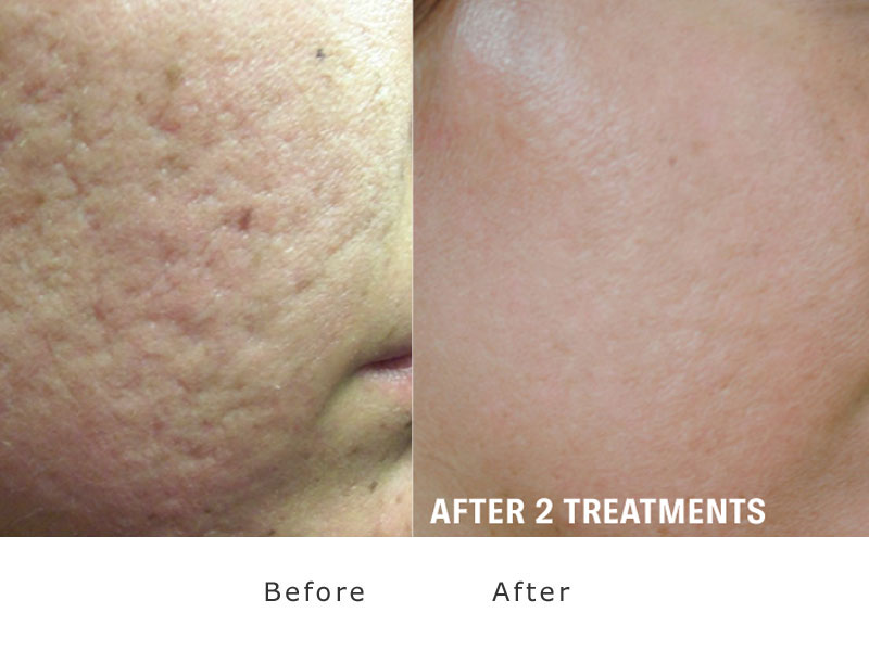 skin improvement sample 1 treatment of xeo lasering