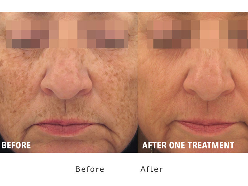 smoother skin after one treatment of xeo laser